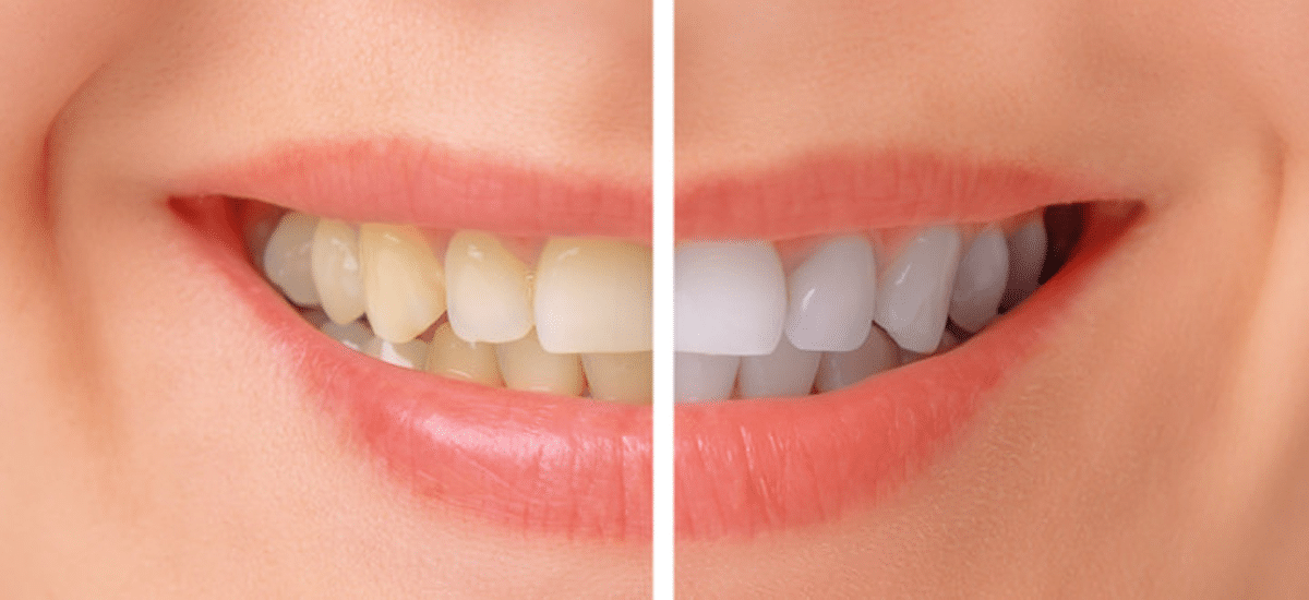 Teeth whitening in Three Rivers MI